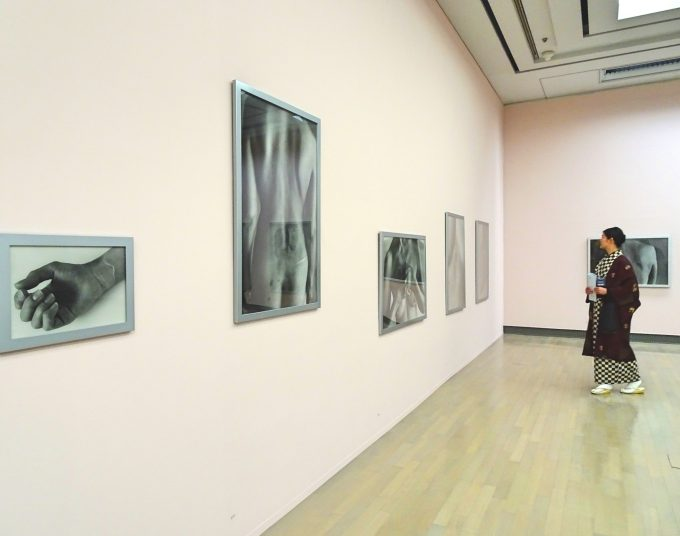 「石内 都 肌理(きめ)と写真」では、女性の傷跡だけを集めた「Innocence」も展示
