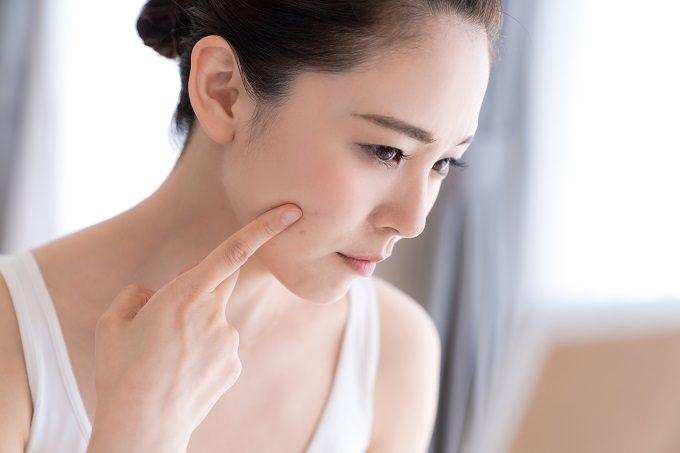 マスクによる肌トラブル「マスクネ」とは?皮膚科医が教える大人ニキビ予防法5選